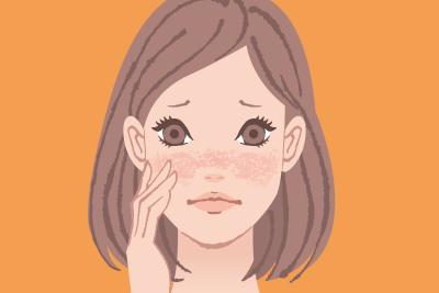赤み・敏感肌